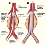 aneurysm_endovascular