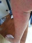 chigger rash